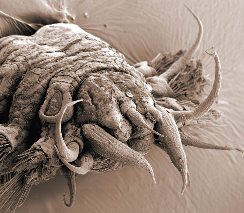 worm polychaete electron microscope photography philippe crassous Incredible Examples of Electron Microscope Photography