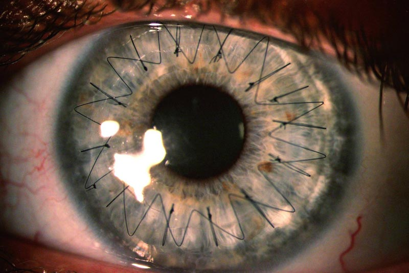 macro close up of stitches insidie eyeball from cornea transplant Picture of the Day: What Stitches in Your Eye Look Like