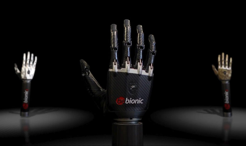 terminator arm bebionic3 rslsteeper 5 Terminator Arm is Worlds Most Advanced Prosthetic
