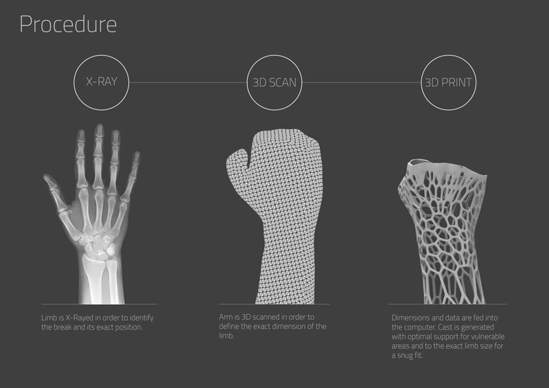 3D printed cast design by jake evill (2)