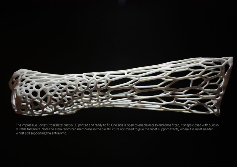 3d printed cast design by jake evill 3 This Revolutionary Membrane Can Keep a Heart Beating Outside of the Body