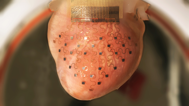 revolutionary membrane keeps heart beating outside of the body (1)