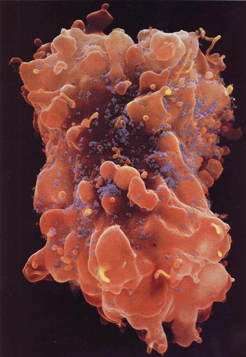 02---T-cell-under-attack-from-HIV