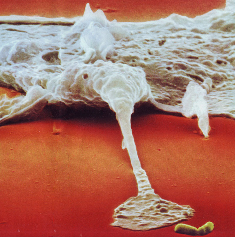 09---A-macrophage-reaches-out