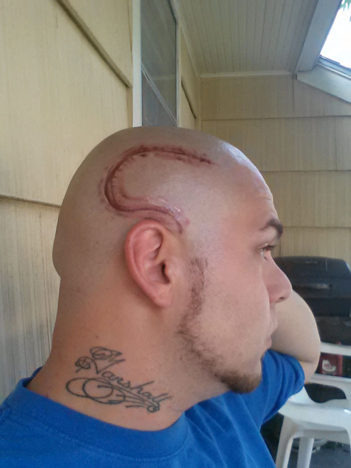 Dad Gets Matching Tattoo of Son's Cancer Scar For Solidarity (1)