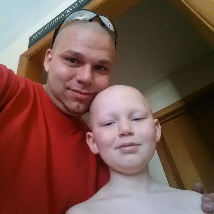 Dad Gets Matching Tattoo of Son's Cancer Scar For Solidarity (2)