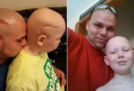 Dad Gets Matching Tattoo of Son's Cancer Scar For Solidarity