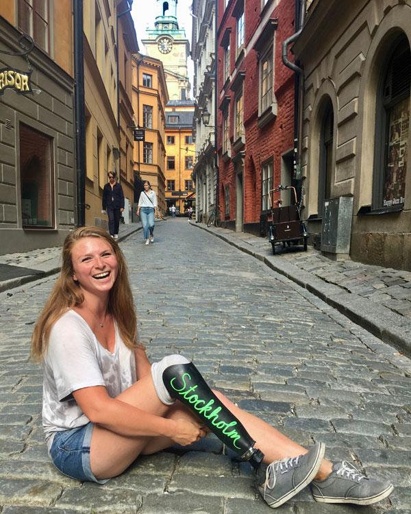 got myself a chalkboard leg and went on a trip reddit devgal 14 Got myself a chalkboard leg and went on a trip (15 Photos)