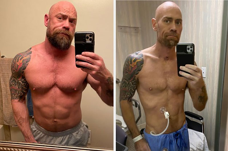 ripped nurse before after six weeks of covid selfie Nurse Who Got Coronavirus Shares Startling Photo After 6 Weeks in Hospital