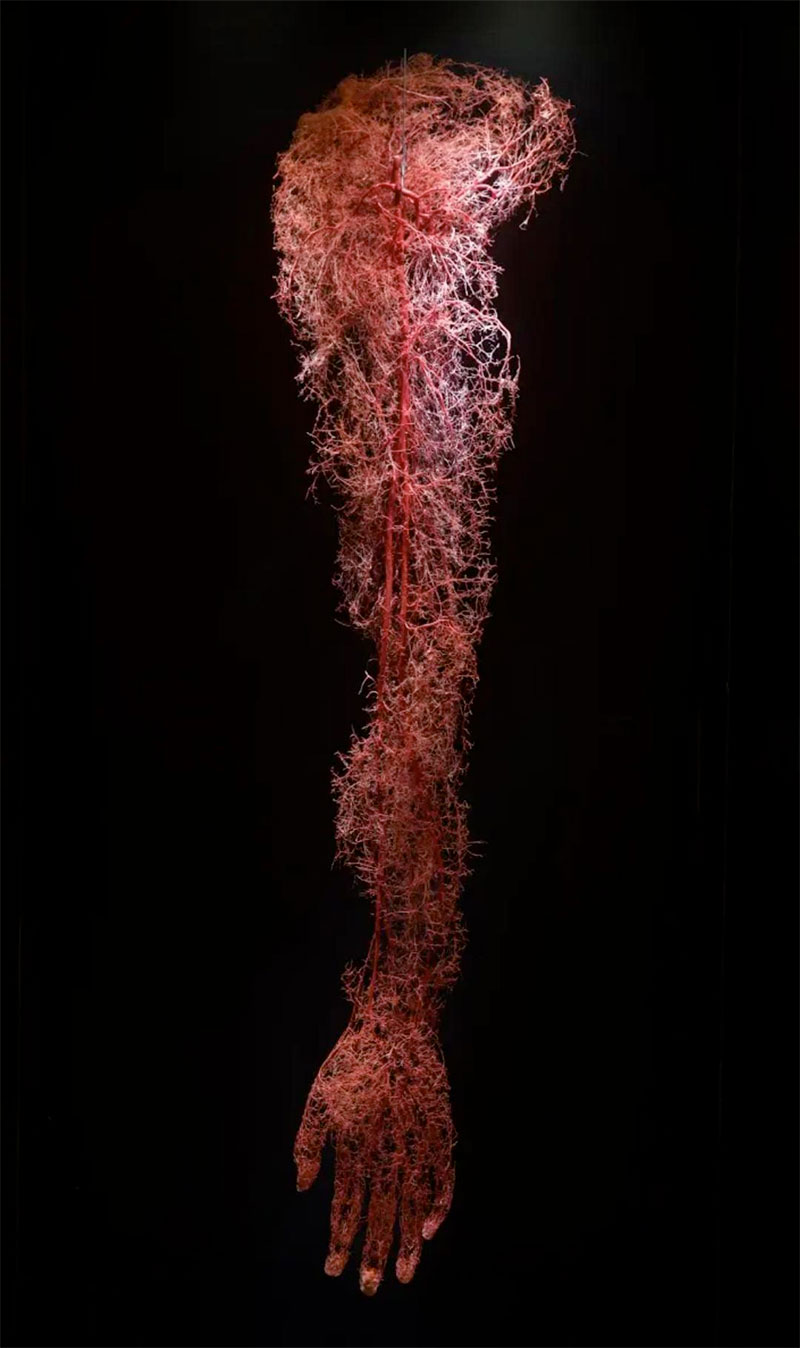 circulatory system of a human arm 2 The Circulatory System of a Human Arm