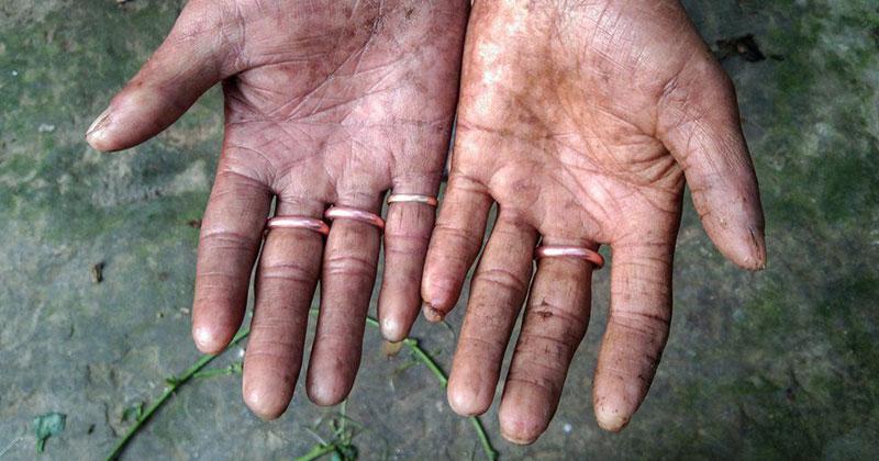 The Family Born With No Fingerprints